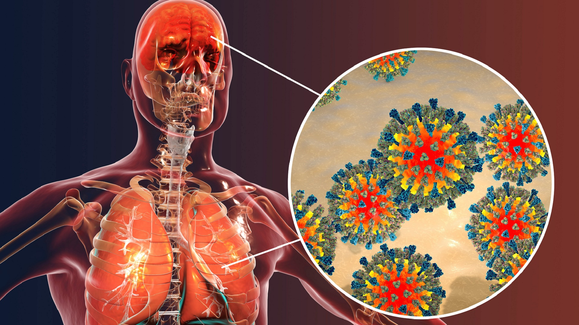 immune system_measles_iinfectious disease