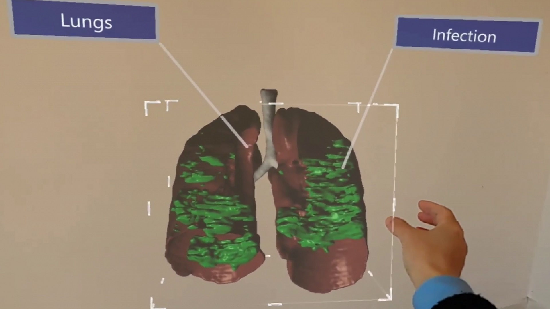 3D model of COVID-19 infected lung