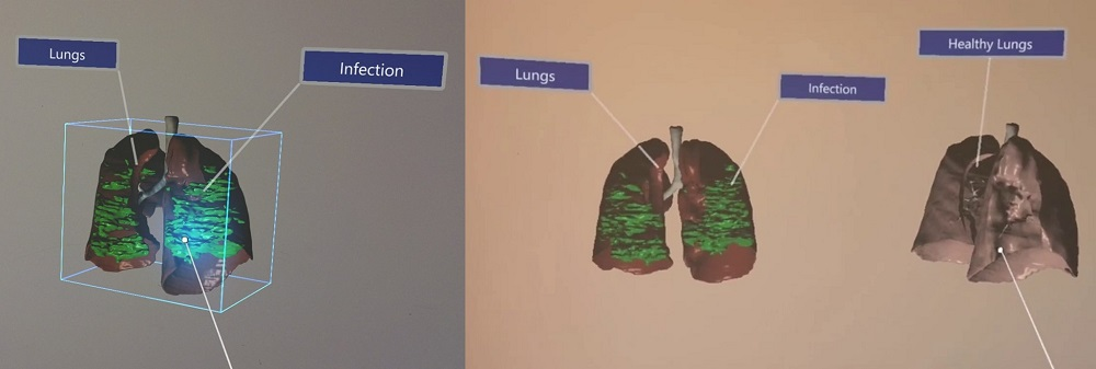 Virtual Reality displays of COVID-19 infected lungs